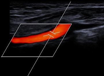 Ultraschall-3