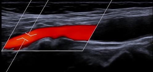 Ultraschall-5