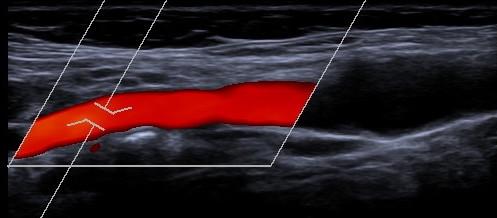 Ultraschall-6