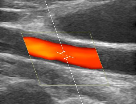 Ultraschall-8
